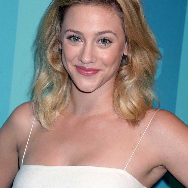 Une actrice de « Riverdale » parle ouvertement de ses problèmes d'acné sévère
