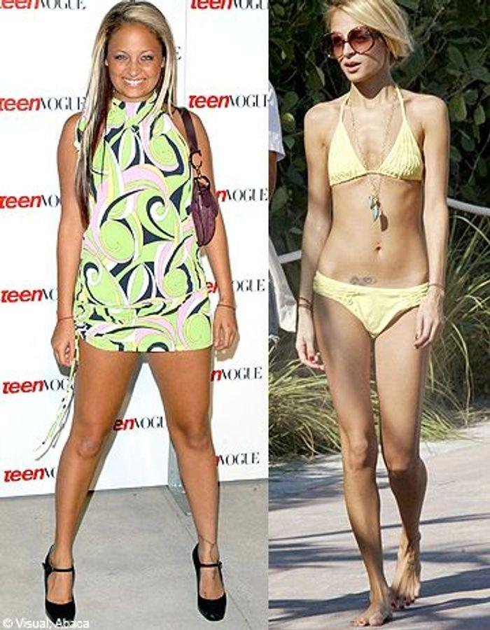 Stars : vraies minces ou anorexiques ?